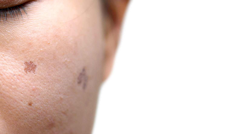 L'hyperpigmentation