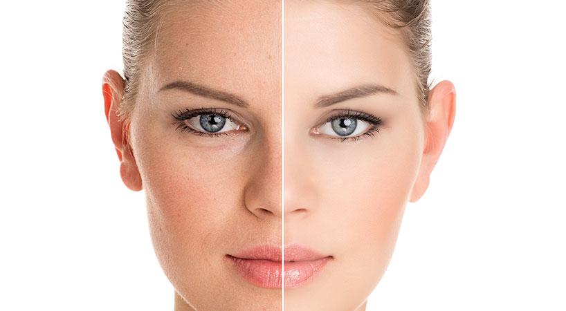 Etude du visage et traitement esthétique