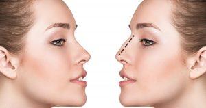 Comment combiner critères subjectifs et objectifs dans l'approche de la volumétrie du visage