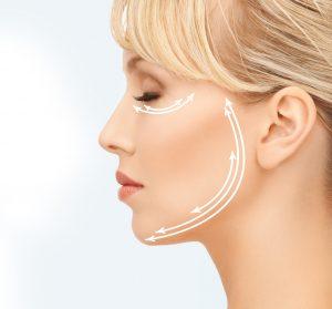 Le vieillissement du visage, principes de traitement par fils de tension liftants et produits de comblement